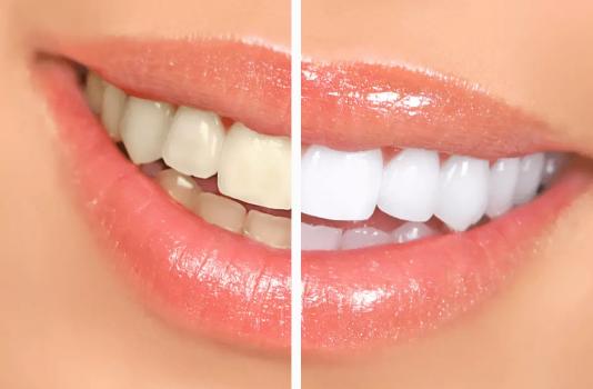 Dentista Paranagua - Clareamento | Antes e Depois