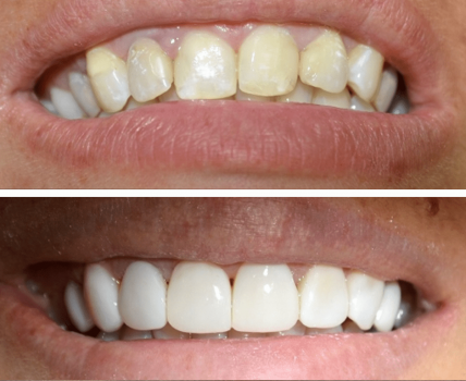 Dentista Paranagua - Restauração | Antes e Depois