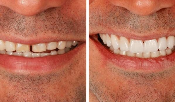 Dentista Paranagua - Lentes de Contato | Antes e Depois